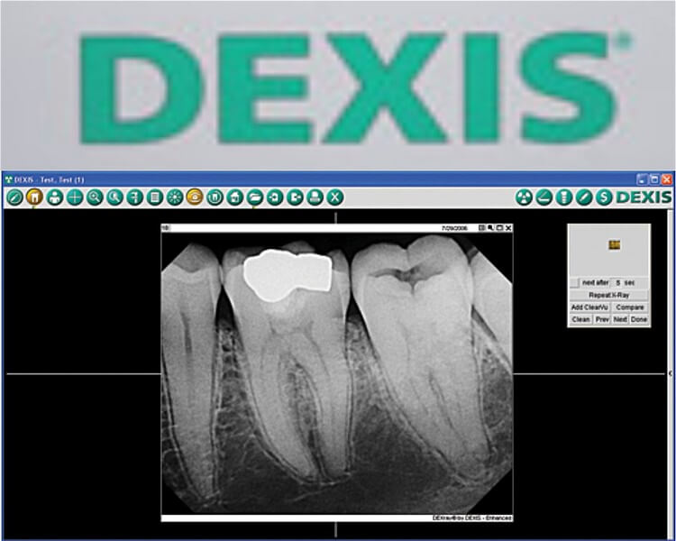 Dexis x-ray machine