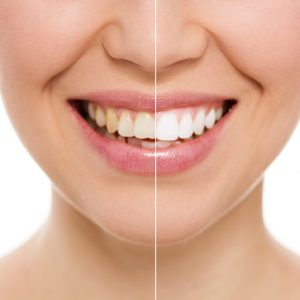 If you're wondering how your cosmetic dentist in Westfield can improve your teeth, Indy Dental Group has a multitude of solutions to make your smile radiant.