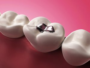If you have a broken filling, you should see your dentist in Westfield to prevent the need for root canal therapy.