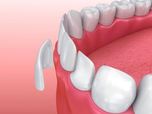 Porcelain veneers in Indianapolis from the team at Indy Dental Group are the perfect solution to fix gaps, cracks, short teeth, and alignment problems.